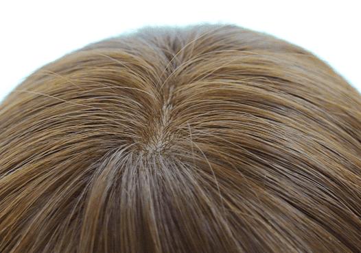 アンベリールの自然な頭頂部